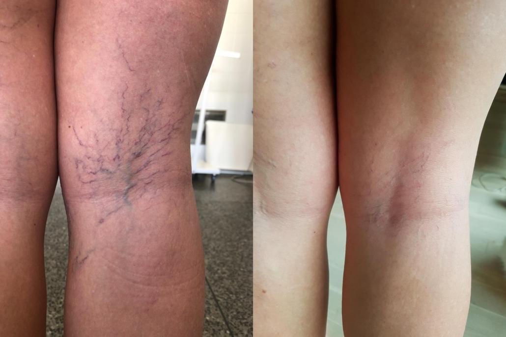 Før og efter billede af karsprængninger